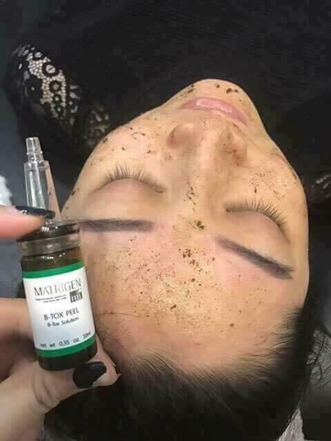 Matrigen B-Tox Peel Treatment