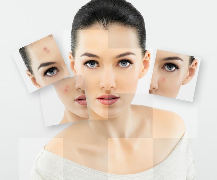 cách giữ da mặt không bị mụn