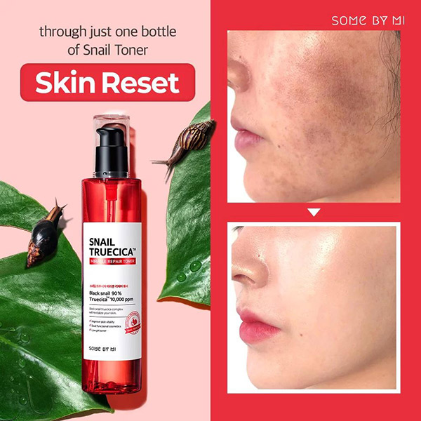 Nước Hoa Hồng Some By Mi Snail Truecica Miracle Repair Toner 135ml